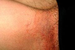 Fungal infection in the groin, Psoriasis, dermatitis, eczema. royalty free stock photos
