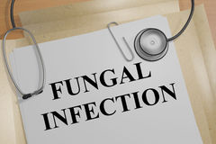 Fungal Infection - medical concept. 3D illustration of FUNGAL INFECTION title on a medical document Royalty Free Stock Image
