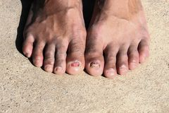 Fungal infection of nail young. Man feet Stock Images