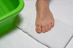 Fungal infection, toe nail. Fungal infection of toe nails,leg on clean white cotton towel preparing for treatment stock images
