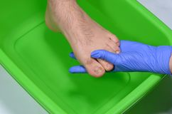 Doctor`s hand holds toe, fungal infection of nail. Fungal infection of toe nails, treatment of nail disease , poor footwear as the cause of the disease stock image