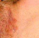 Fungal infekcja w pachwinie, łuszczyca, dermatitis, egzema zdjęcie stock