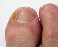 Fungal Nail Infection on big toe. White background royalty free stock photo