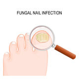 Fungal nail infection. Onychomycosis or tinea unguium is a fungal infection of the nail stock illustration