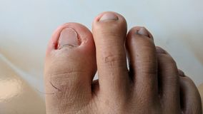 Fungal nail infection. Paronychia is an infection of the tissue adjacent to a nail