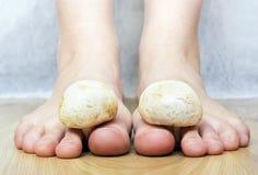 Come trattare un fungo di carbonato di sodio di piedi