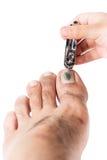 Fungi on toenail and nail clippers  Stock Photo