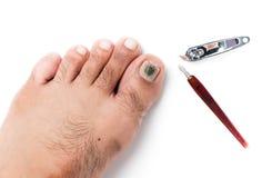 Fungi on toenail and nail clippers  Royalty Free Stock Photo