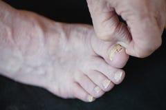 Fungo dell'unghia del piede Fotografie Stock