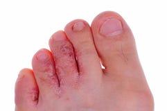 Fungo di piede dell'atleta Immagini Stock