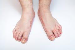 Fungos de pé de atleta Fotografia de Stock
