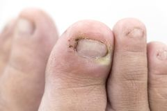 Close up of Fungus Infection on Nails foot, Finger with onychomy. Fungus of foot close-up, isolated on white background. The concept dermatology, treatment royalty free stock photography