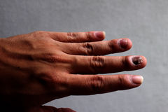 Fungus Infection on Nails Hand, Finger with onychomycosis. - soft focus Stock Photo