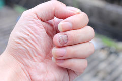 Fungus Infection on Nails Hand, Finger with onychomycosis. - soft focus Royalty Free Stock Photos