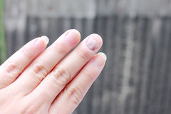 Fungus Infection on Nails Hand, Finger with onychomycosis. - soft focus Royalty Free Stock Images