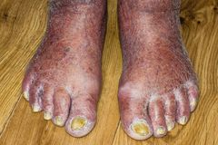 Fungus Infection on Nails of Man`s Foot. Old senior man stock photography