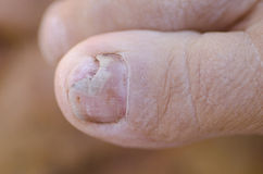 Fungus infection at toenail Stock Photos