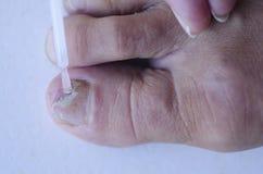 Fungus infection at toenail medical treatment Stock Photo