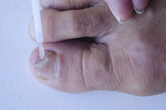 Fungus infection at toenail medical treatment Stock Image