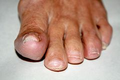 Fungus on the nail. Twisted fingers on the foot with calluses. B. One on the big toe stock image