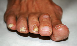 Fungus on the nail. Twisted fingers on the foot with calluses. Bone on the big toe. Fungus on the nail. Twisted fingers on the foot with calluses. Bone on the royalty free stock photos