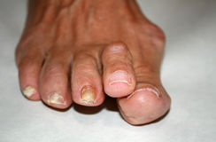 Fungus on the nail. Twisted fingers on the foot with calluses. Bone on the big toe. Fungus on the nail. Twisted fingers on the foot with calluses. Bone on the stock photography