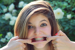 Funny expression with braces. Young pretty teenager with funny expression , showing her braces Stock Images