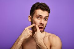 Funny man picking the pimple on his cheek. Funny man picking the painful pimple on his cheek, close up photo. the explulsion of pus from the pimple stock photo