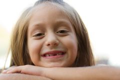 Funny toothless little girl Stock Images