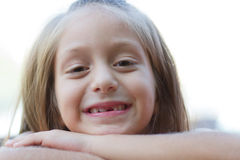 Funny toothless little girl Royalty Free Stock Images