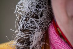 Funny women`s braid - covered with hoarfrost on frosty winter day. During a walk Stock Photo
