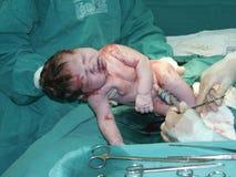 Funzionamento Cesarean 3 Immagini Stock