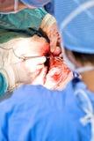 Funzionamento di Chirurgic Fotografia Stock