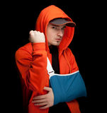 Furious young man with broken hand Royalty Free Stock Photos