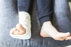 Fused leg in a cast laying on the pillow. Fused leg in a white cast stock photo