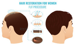 FUT hair loss treatment. Female hair loss treatment with follicular unit transplantation. Stages of FUT procedure for women. Alopecia infographic medical Royalty Free Stock Photos