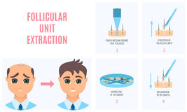 FUT hair loss treatment. Male hair loss treatment with follicular unit extraction. Stages of FUE procedure. Alopecia infographic medical design template for Stock Image