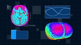 Futuristic medical interface. Brain MRT scan. Full HD medical colorful background royalty free illustration