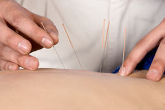 Fysioterapeut som gör accupuncture Arkivbilder