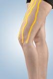 Fysiotherapiebehandeling met therapeutische band voor beenpijn Royalty-vrije Stock Afbeeldingen