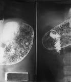 Górna jelitowa nauka 21 lat kobieta, zamyka up przy żołądkiem i pierwszy częścią mały jelito oba pos (UGI) Zdjęcia Stock
