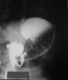 Górna jelitowa nauka 21 lat kobieta, zamyka up przy żołądkiem i pierwszy częścią mały jelito oba pos (UGI) Obraz Stock