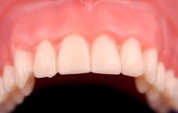 górne zęby. Obraz Stock