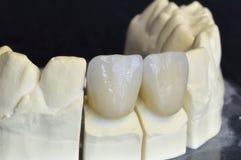 Górni incisors w cyrkonie Zdjęcie Royalty Free