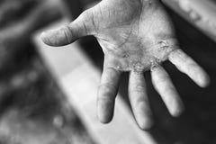 Gömma i handflatan med valkar Hårt arbetebegrepp Blåsor på den sårade handen royaltyfria bilder