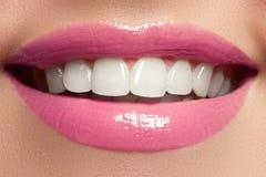 Göra perfekt leendet, når du har blekt Tandvård- och blekmedeltänder Kvinnaleende med stora tänder Närbild av leendet med vitt su Arkivbilder
