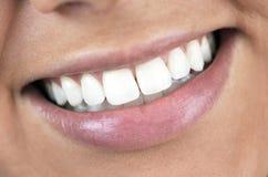 Göra perfekt leendet, vita tänder Fotografering för Bildbyråer