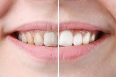 Göra vit eller bleka behandling, före och efter, kvinnatänder och leende, slut upp, på vitt royaltyfria bilder