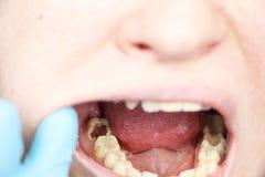 Głębokie próchnicy, otwarci kanały, czyści kanały Pacjent przy stomatolon na wstępie, periodontitis traktowanie zdjęcia stock