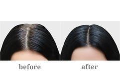 Głowa dziewczyna z czarnym szarym włosy Włosiana kolorystyka Before and after zdjęcia stock